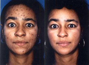 Brown and Black acne spots lahore