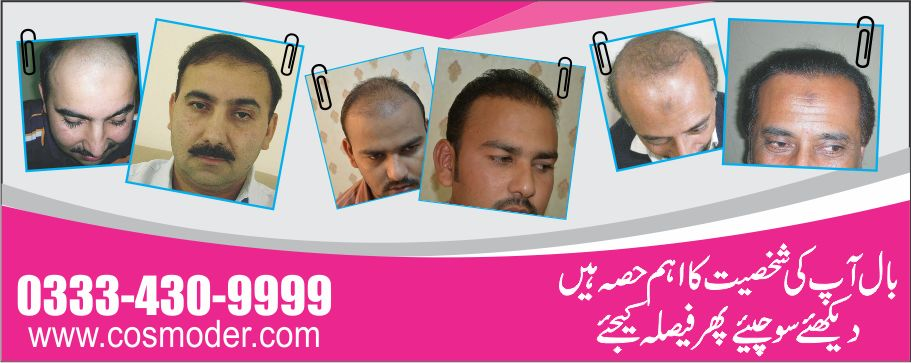 Fue hair transplant Pakistan Lahore before and after