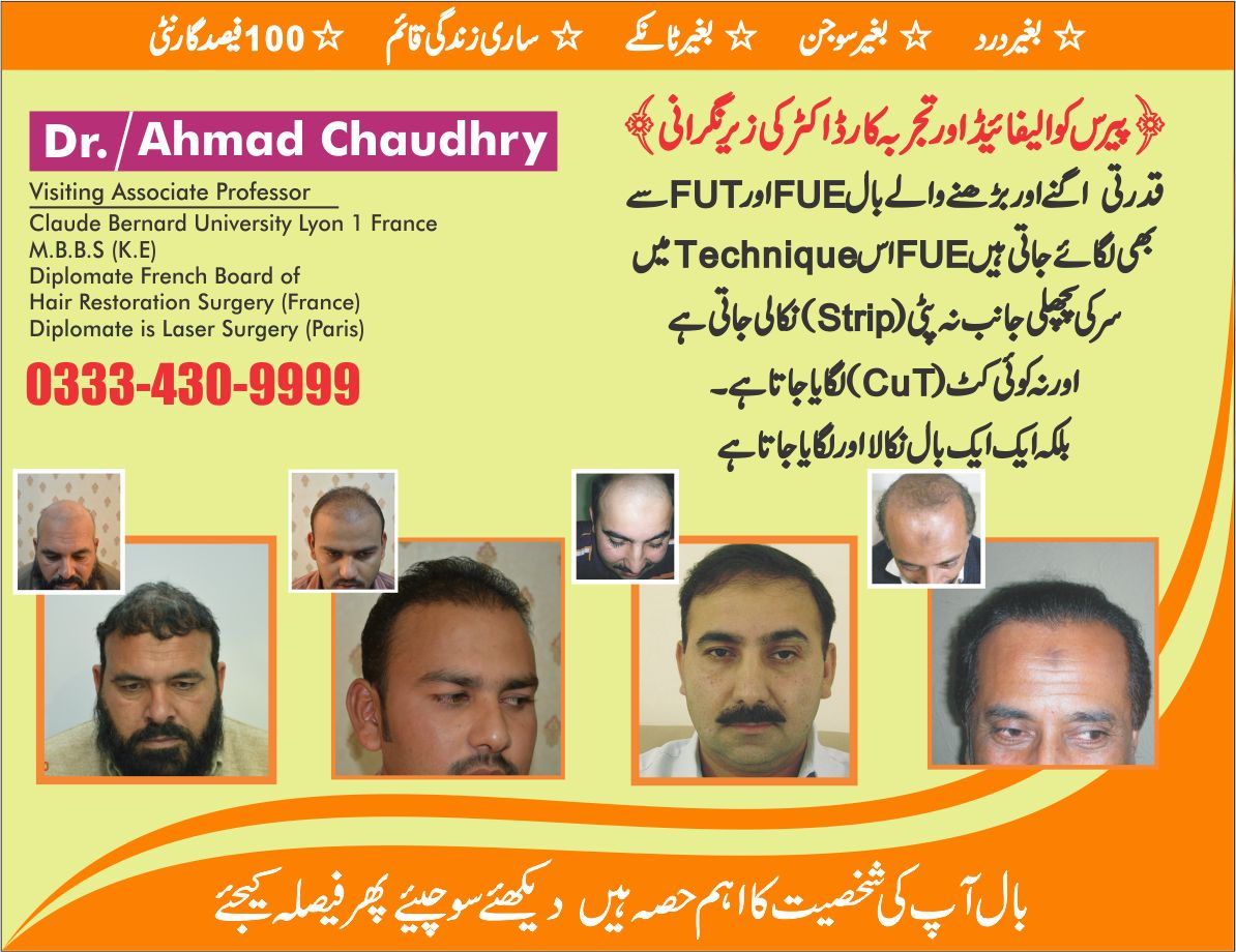 Hair restoration clinic Lahore results