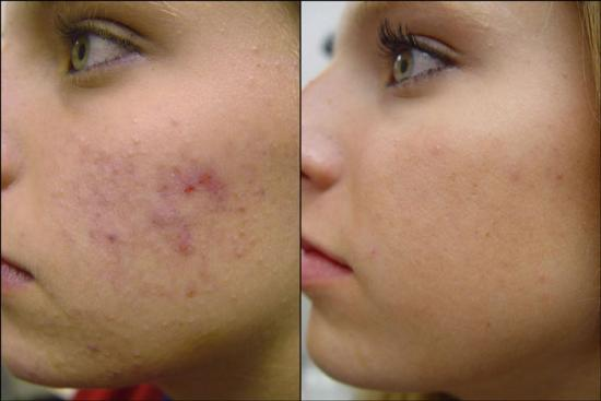 Red Acne scar treatment Lahore